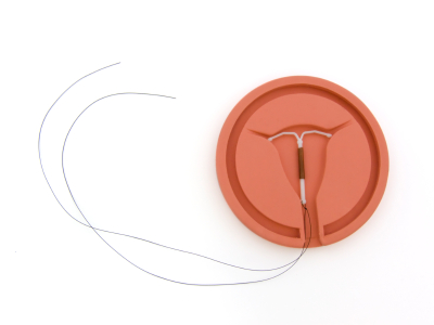 IUD injury lawsuit